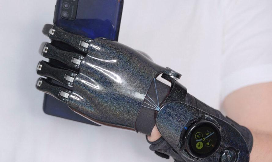 В бионический протез интегрировали «умные» часы