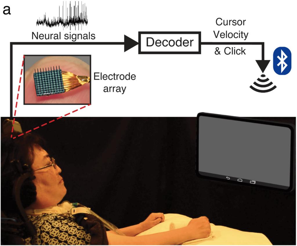Вариант нейроинтерфейса для движения курсором на экране компьютера с использованием электродной матрицы Utah array. Взято из научной статьи.