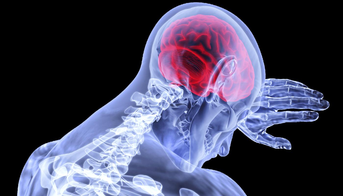 Искусственный интеллект прогнозирует эпилептические припадки до появления симптомов