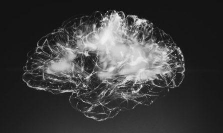 Гидроцефалия на МРТ нейросеть