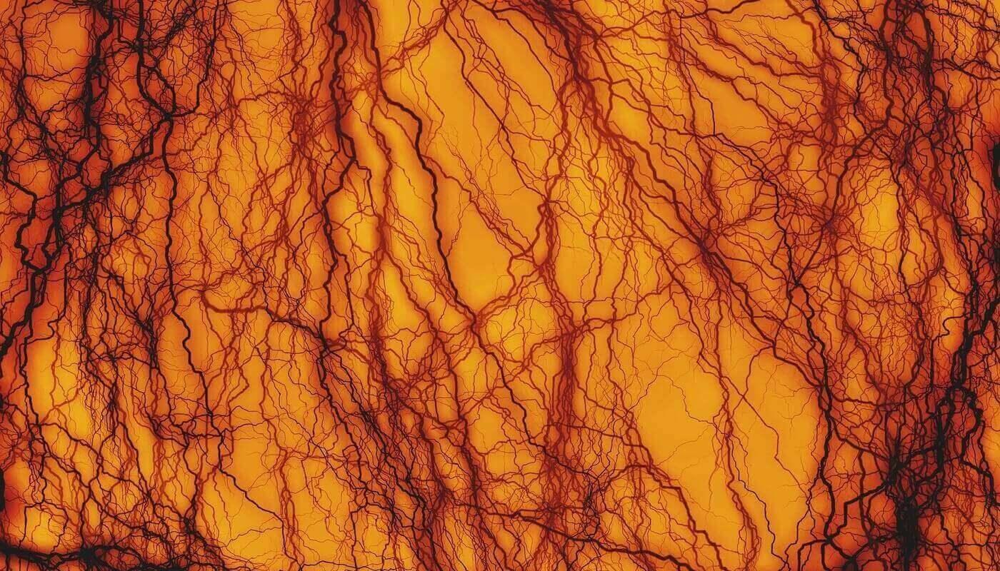 Сужения кровеносных сосудов ищут нейросети