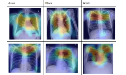 AI Recognises Patient's Racial Identity In Medical Images